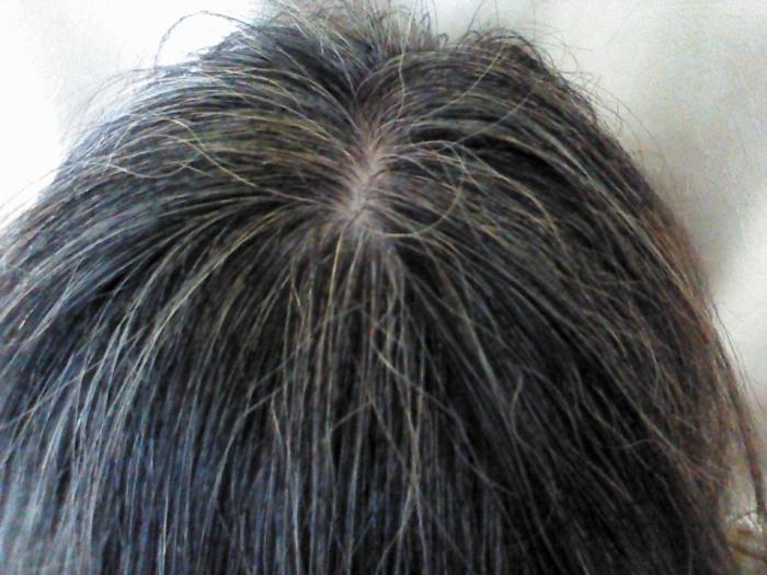 gray-hair-countermeasure-stress02